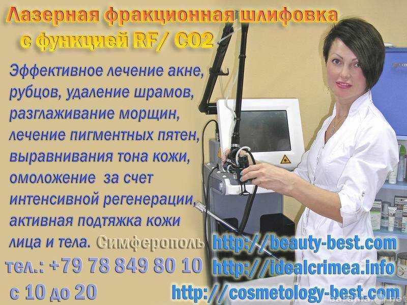 Предложение: Фракционная лазерная шлифовка!  Крым