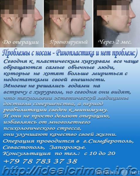 Предложение: Коррекция формы носа (ринопластика) Крым